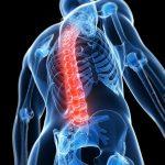 Inflammed spine